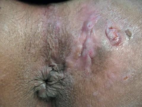 3 maladie de verneuil