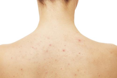 maladie de verneuil et acne